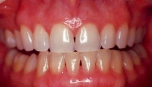 Knoxville Teeth Whitening