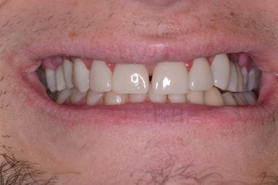 Rick's smile after he went to Jim Kotsianas the Dentist Knoxville Trusts width=