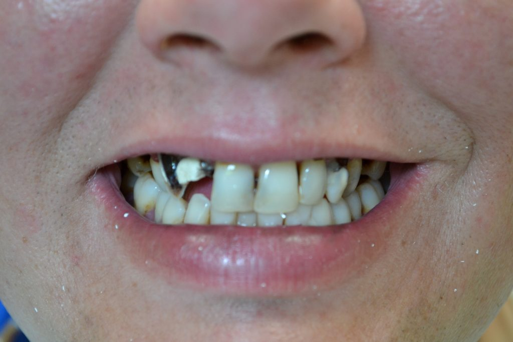 Customer's smile before they went to Jim Kotsianas the Dentist Knoxville Trusts