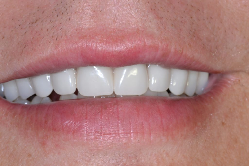 Customer's smile after they went to Jim Kotsianas the Dentist Knoxville Trusts