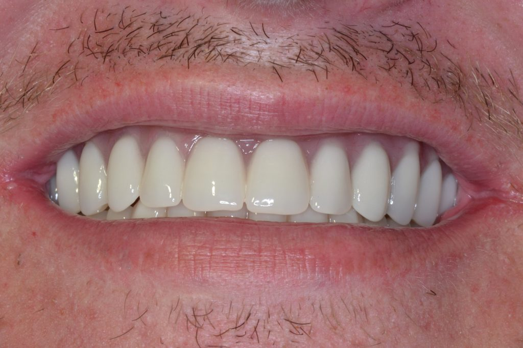 Before & After Results at James F. Kotsianas, DDS, in West Knoxville